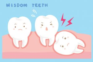 Wisdom Teeth Oakwood GA