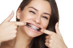 Adult Orthodontics Gainesville GA