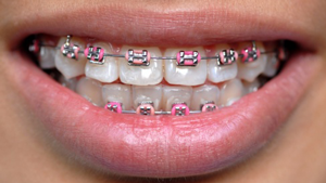 Types of Braces Gainesville Oakwood GA | Sosebee & Britt ...